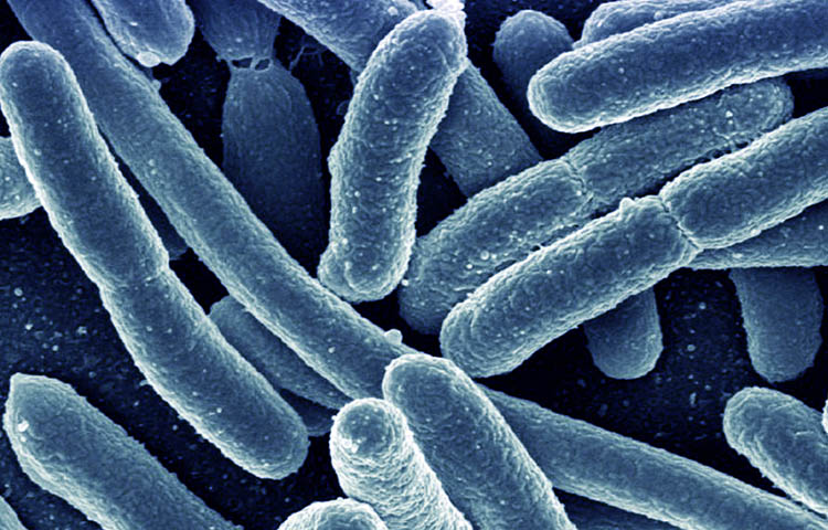 Diferencias entre infeccion viral e infeccion bacteriana
